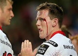 A bloodied Craig Gilroy looks disappointed after Ulster fell to a narrow derby defeat in Limerick Credit: ©INPHO/Ryan Byrne